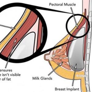 aumento seios protese silicone cirurgiao plastico porto alegre rs