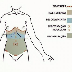 lipoescultura lipoaspiracao barriga panca barriguda abdomen globoso avental pança